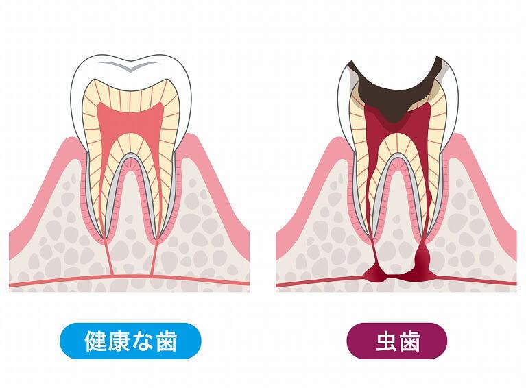 むし歯の早期対処には精密な検査が欠かせません