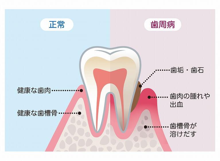 歯の失う原因で最も多いのは歯周病です