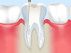 歯内療法(根管治療)とは?