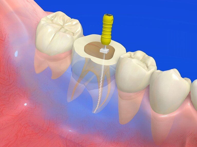 歯の根の病気の原因・治療法