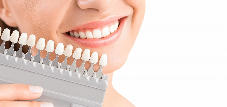 歯の色が気になるという方へ
